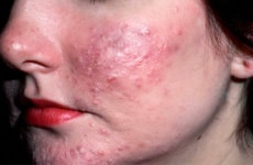 Naturopathy Treatments For Acne