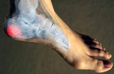 Naturopathy Treatments For Calcaneal Spur