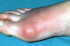 Naturopathy Treatments For Gout