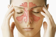 Naturopathy Treatments For Sinusitis