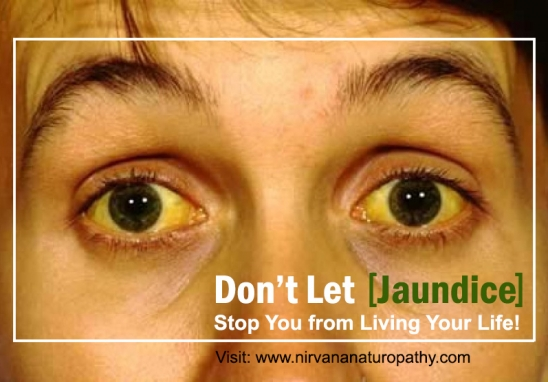 Don't Let Jaundice Stop You from Living Your Life. Naturopathy Has the Cure!